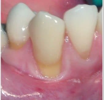 The Ins and Outs of Gum Recession