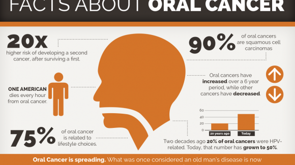 Oral Cancer: Dentistry and the Oncologic Team