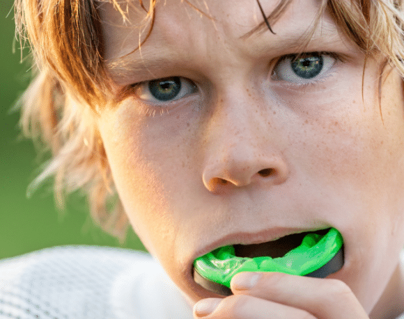 How to Choose an Athletic Mouthguard to Protect Your Health